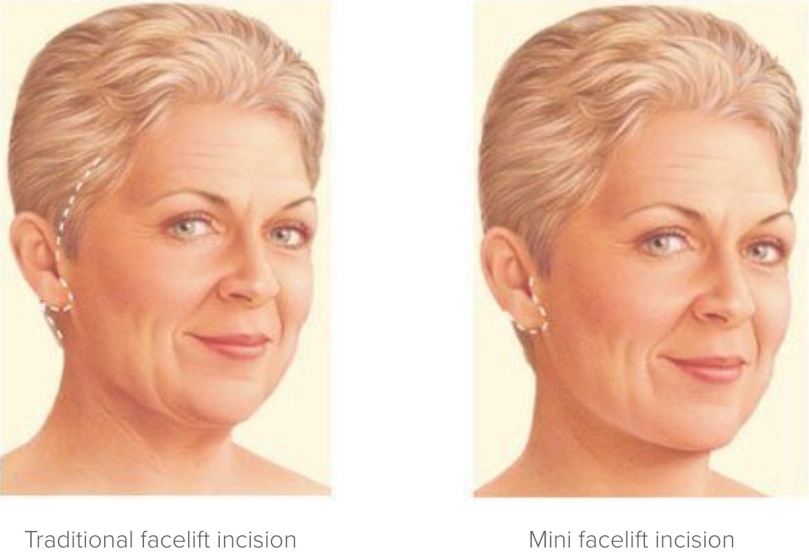 Facelift incision locations