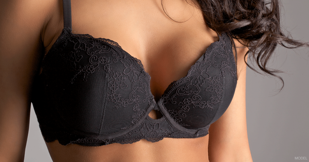 Woman in black lace bra showing off the results possible from breast surgery